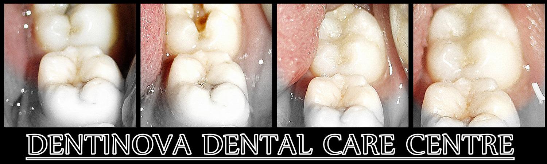 Dentinova